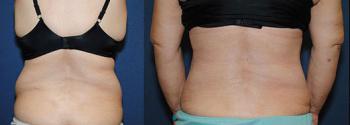 Liposuction Patient 17