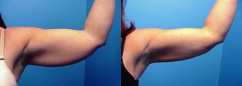 Liposuction Patient 8
