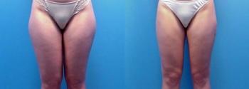 Liposuction Patient 10