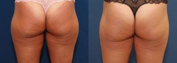 Liposuction Patient 13
