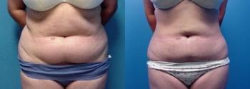 Liposuction Patient 6