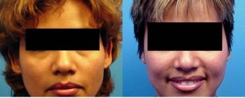Ear Pinning (Otoplasty) Patient 2